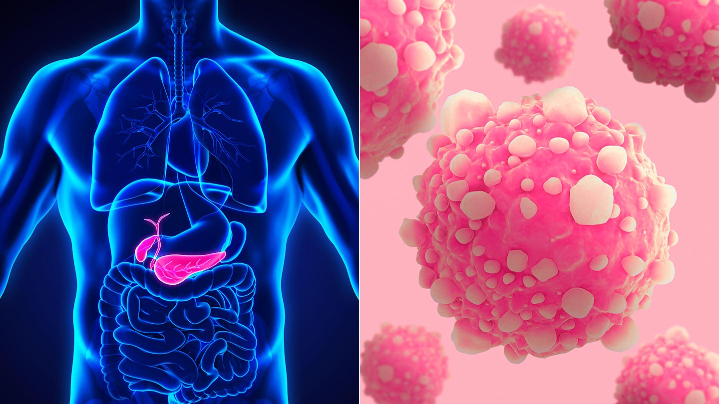 Pancreatic-Cancer-Could-You-Be-at-Risk-1